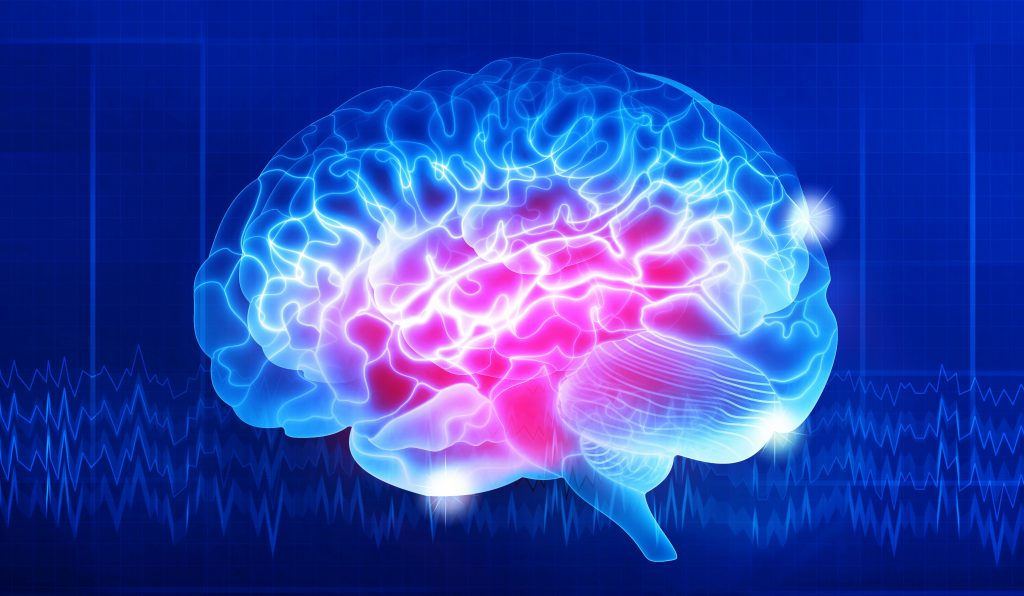 neurodiversity_research